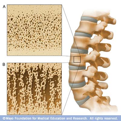 http://kosmaser.files.wordpress.com/2010/09/osteoporosis.jpg?w=660&h=660