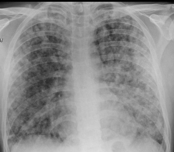 Αποτέλεσμα εικόνας για H δευτεροπαθής ή μικροβιακή πνευμονία..